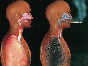 polmoni-di-fumatore