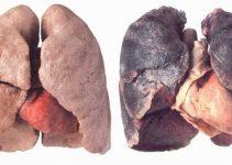 polmoni-fumatore