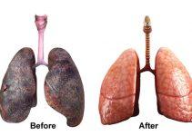 Beneficidei polmoni quando smetti di fumare