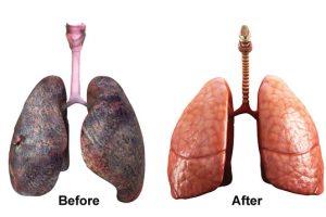 Tosse e catarro dopo aver smesso di fumare?