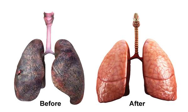 come pulire i polmoni di un fumatore sentirsi completamente gonfio e malato